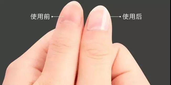 8.1团品修正灰指甲辅助治疗盒组合装 x2盒一周期装